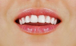 Doncaster East Dentist Tips 6 Effective Ways to get Healthy White Teeth