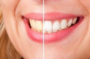 Teeth Whitening Dentist Doncaster East