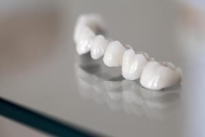 Crowns and Bridges Dentist Doncaster East