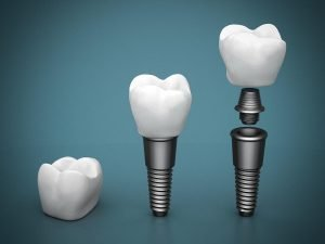 Dental Implants Dentist Doncaster East