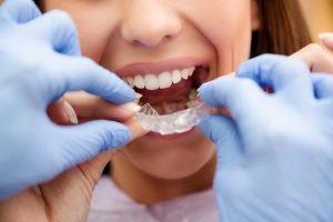 Invisalign Dentist Doncaster East