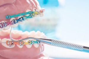 Dental Braces Doncaster East