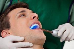 Dental Sealants Doncaster East