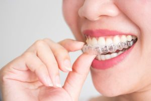 Does Invisalign Work Dentist Doncaster East
