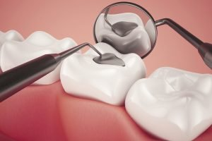 Inlays and Onlays Dentist Doncaster East